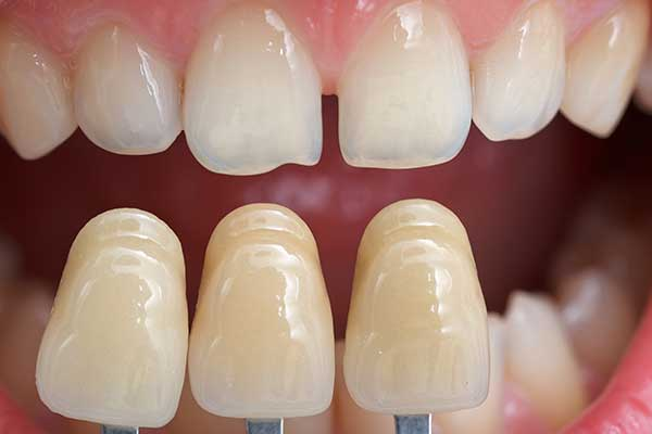 Bonding Shade Guide being matched to patient tooth shade