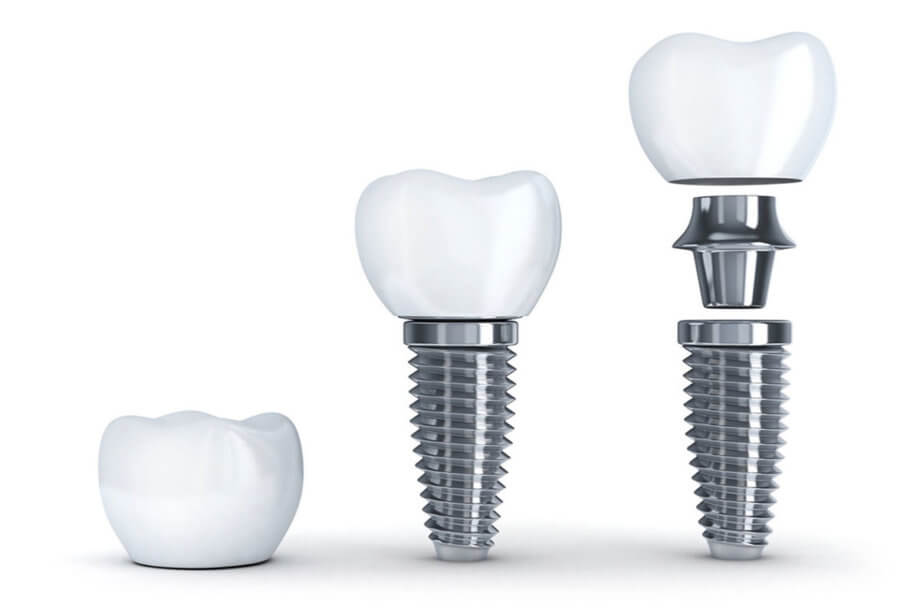 A Step by Step Guide to Dental Implants