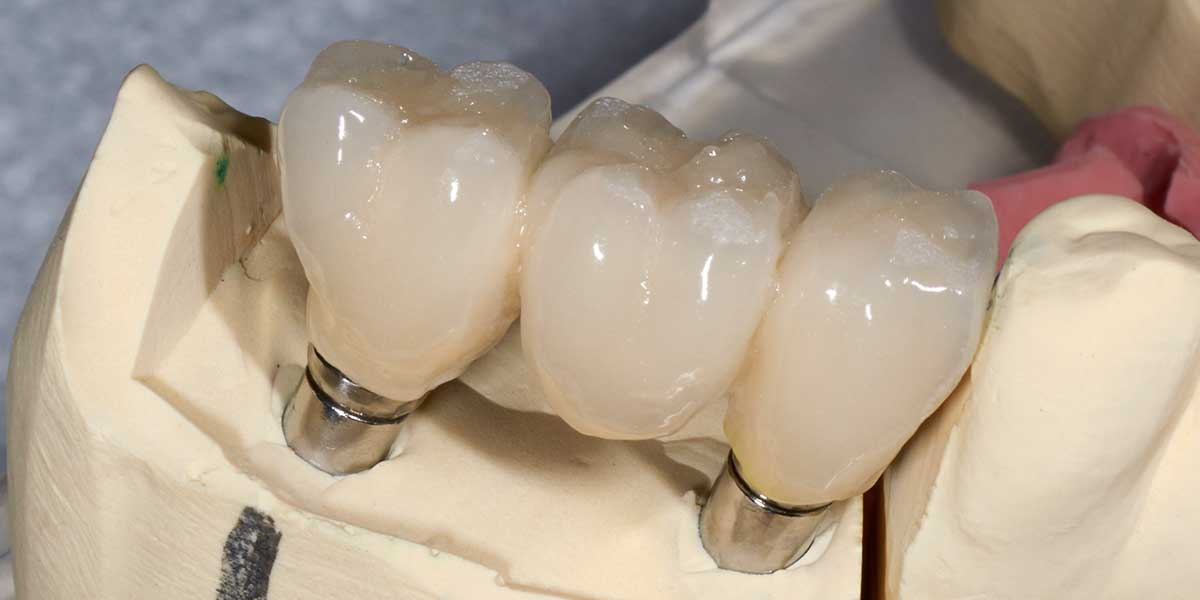 Dental Implant Supported Bridge in NYC