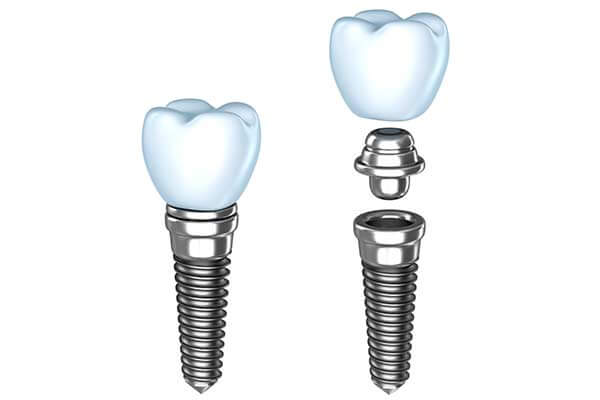 Single Dental Implants in NYC