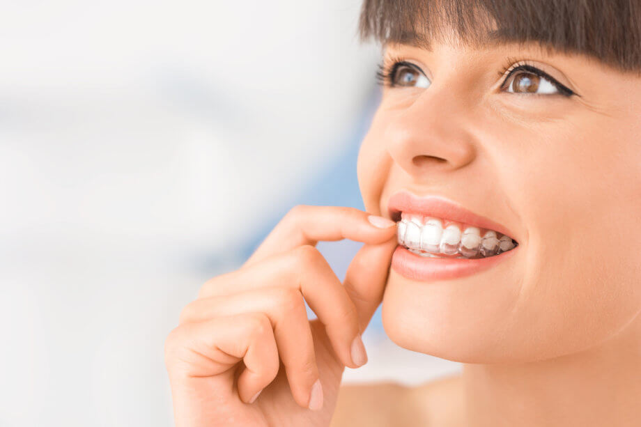 Benefits of Invisalign Over Traditional Braces