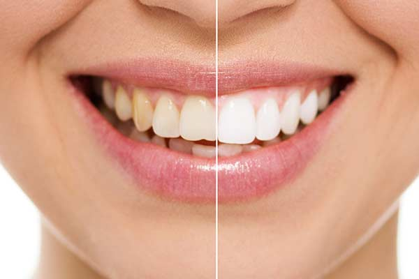 Before and After Showing teeth whitening shades